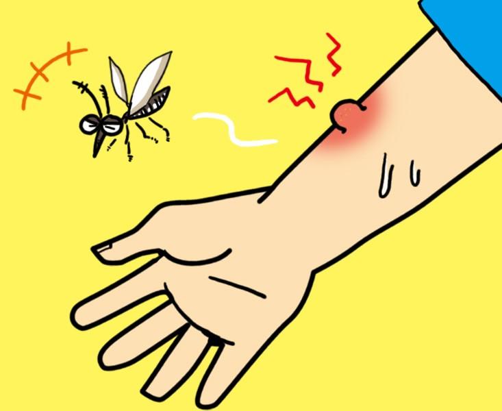 蚊に刺されイメージ画像
